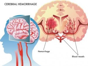 brain-hemorrhage-illustration