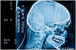 Brain Scan - Injury Caused By Accident